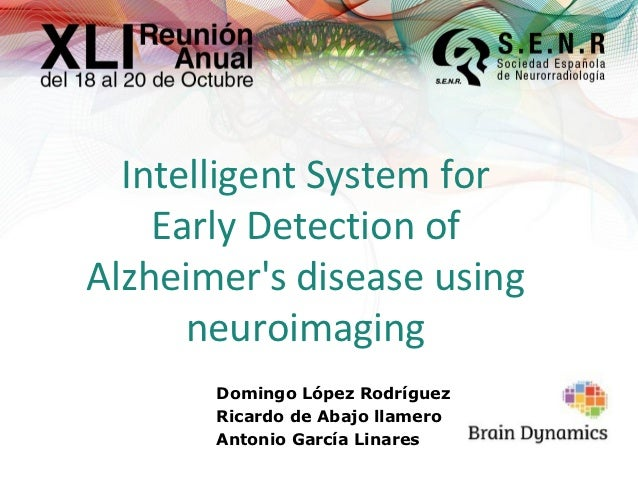 Intelligent System for Alzheimer's Disease