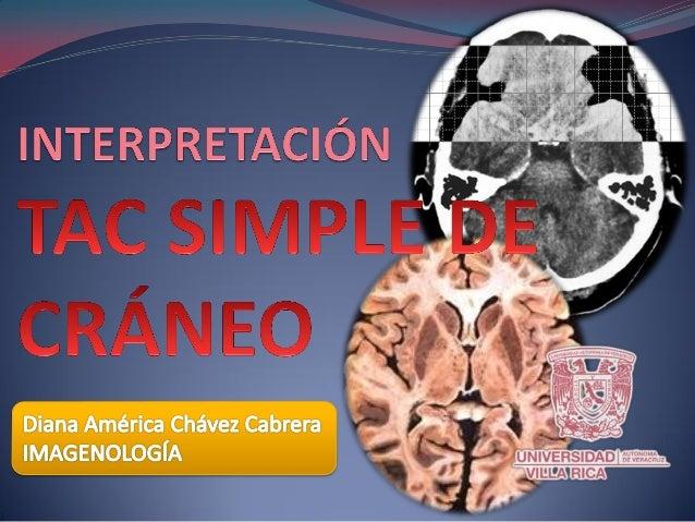  La TAC simple de cráneo no requiere de preparación previa.  INMOVILIZACIÓN: evitar que el estudio salga «rotado», mejor...