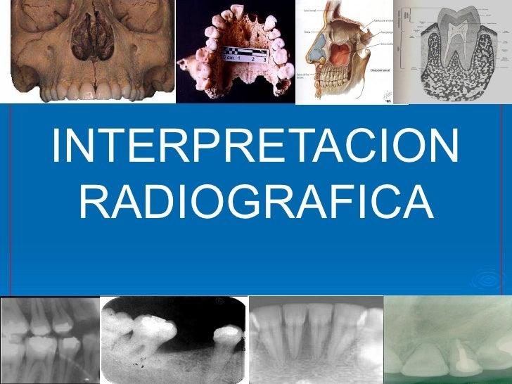 Interpretacion radiografica sin editar.