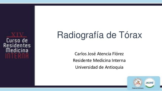Radiografía de Tórax    Carlos José Atencia Flórez   Residente Medicina Interna    Universidad de Antioquia