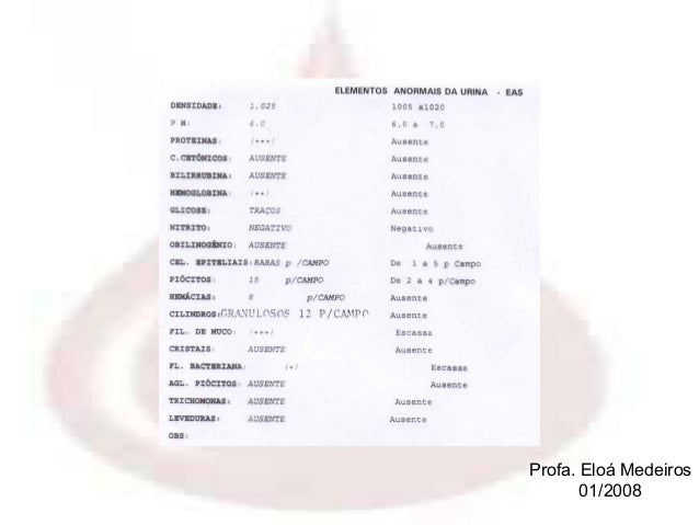 Exame de sangue fan nucleo reagente
