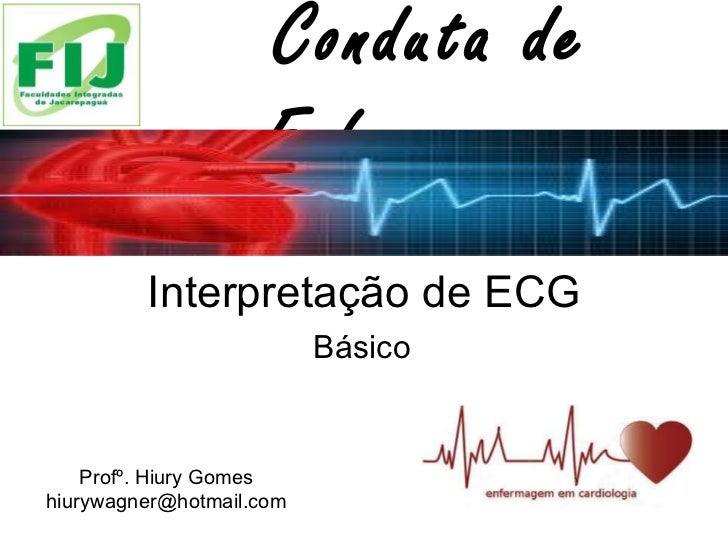 Interpretação de ECG Básico  Conduta de Enfermagem Profº. Hiury Gomes [email_address]