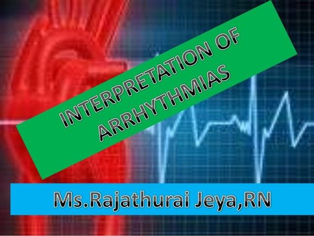 Interpretation of arrhythmias