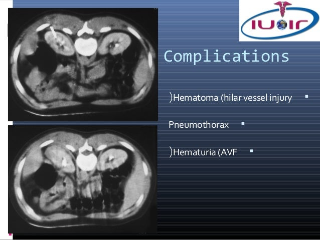 Complications(Hematoma (hilar vessel injury   Pneumothorax      (Hematuria (AVF       