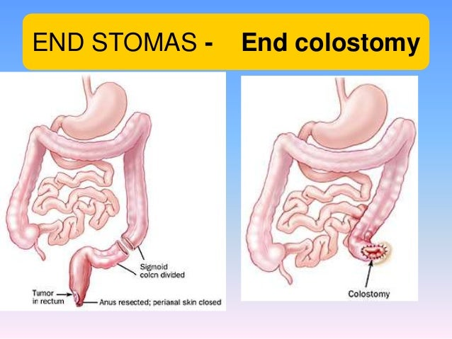 End Colostomy elective surgery 22  END