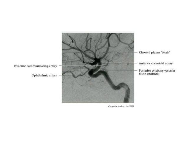 Persistent Artery Trigeminal Trigeminal Artery