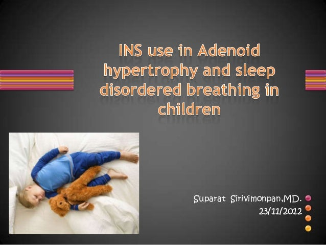 Intranasal steroids in adenoid hypertrophy and sleep disordered breathing in children