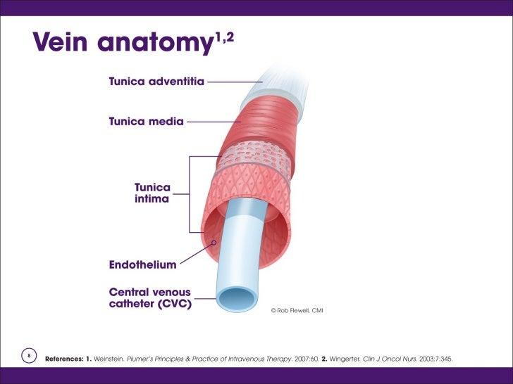 intravenous steroids for ulcerative colitis