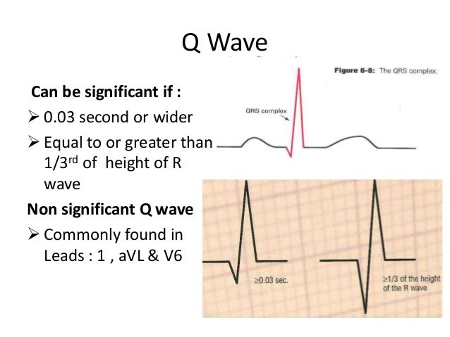 ... waves new q waves cardiac q waves on ekg q enlarged q wave waves q