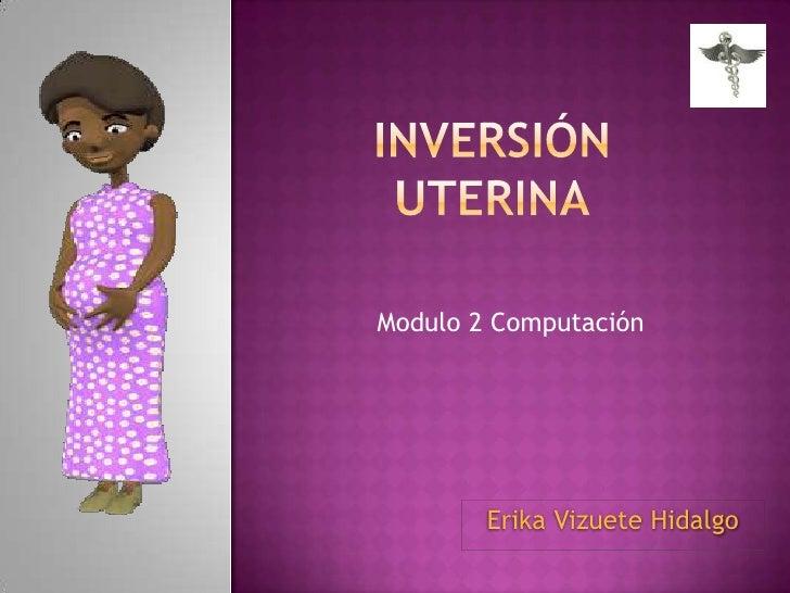 Modulo 2 Computación        Erika Vizuete Hidalgo
