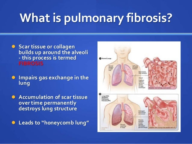 Pulmonay Fibrosis And Viagra