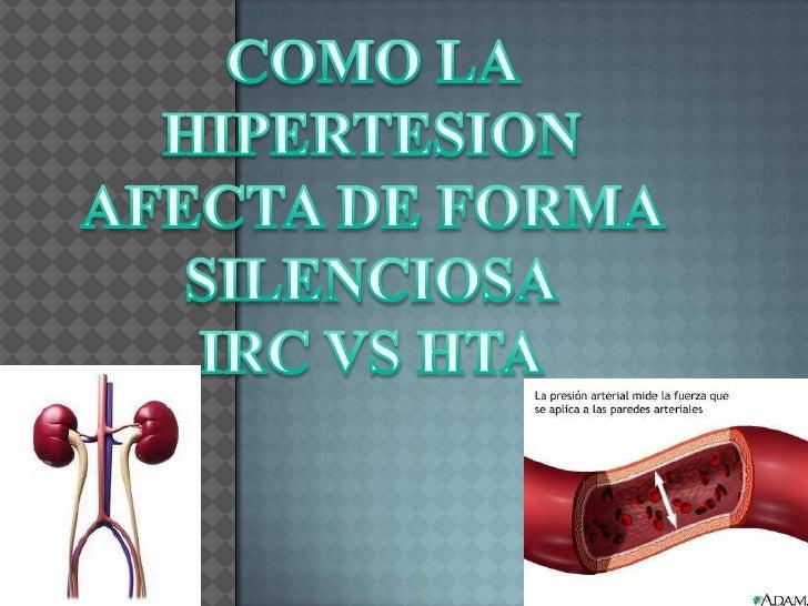 COMO LA HIPERTESION <br />AFECTA DE FORMA <br />SILENCIOSA<br />IRC VS HTA<br />