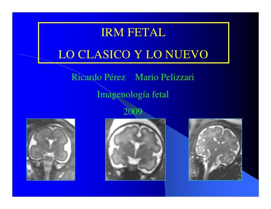 IRM FETAL LO CLASICO Y LO NUEVO  Ricardo Pérez Mario Pelizzari       Imagenología fetal              2009