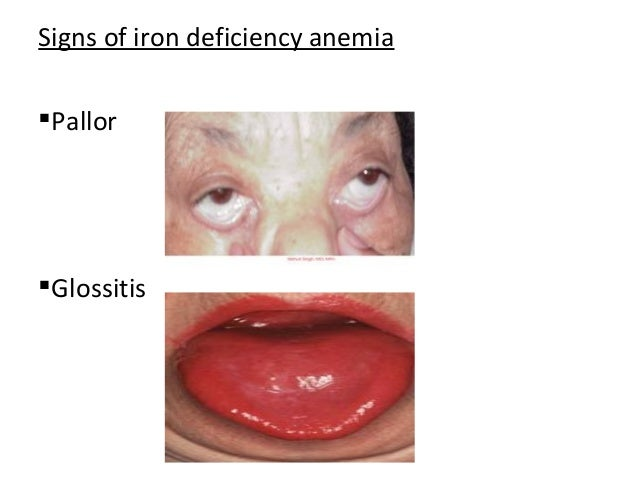 Gallery For > Glossitis Anemia B12 Deficiency Tongue