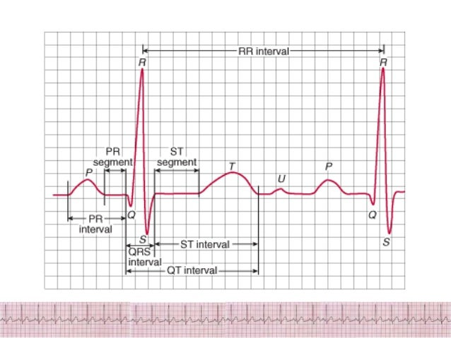ecg thesis 2009 Fulltext - a fetal ecg extraction system based on blind extraction method.
