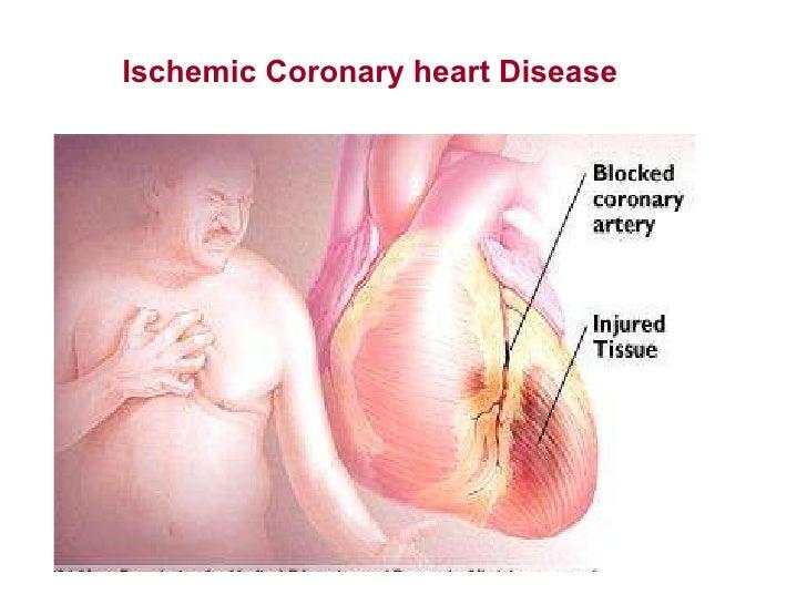 Ischemic coronary heart disease