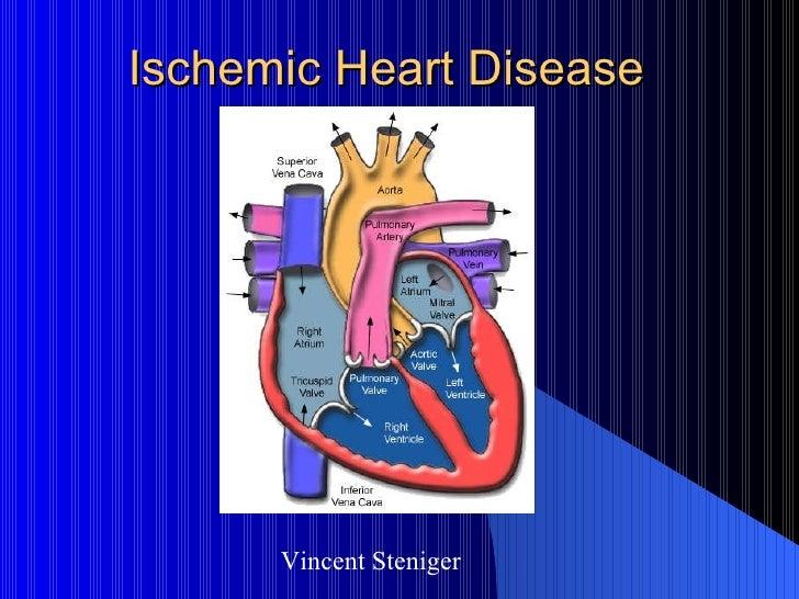 Ischemic Heart Disease Vincent Steniger