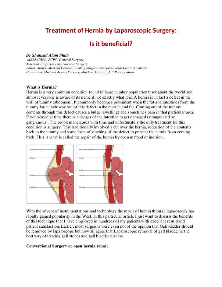 Is laparoscopic hernia repair useful 2