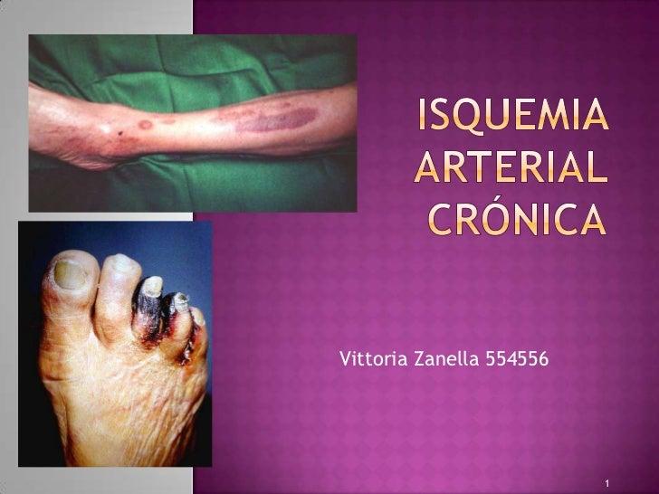 Isquemia Arterial Cr 243 Nica