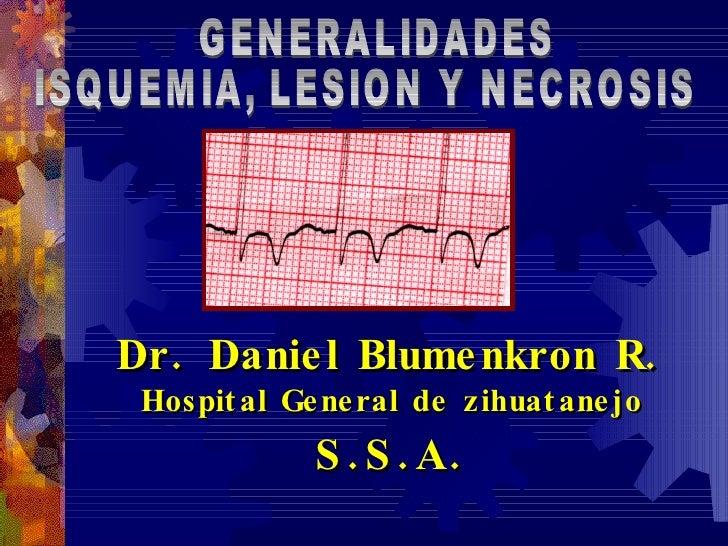 Dr. Daniel Blumenkron R. Hospital General de zihuatanejo S.S.A. GENERALIDADES ISQUEMIA, LESION Y NECROSIS