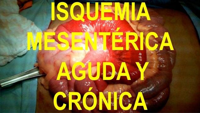 ISQUEMIA MESENTÉRICA AGUDA Y CRÓNICA