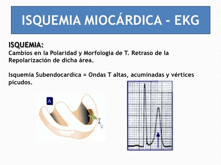ekg isquemia ekg vector pdf ekg vector change