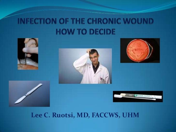 Lee C. Ruotsi, MD, FACCWS, UHM