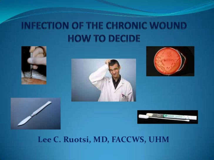 Infection of the chronic wound how to decide