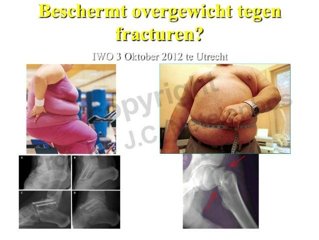 Beschermt overgewicht tegen        fracturen?     IWO 3 Oktober 2012 te Utrecht         em.prof.dr J.C Netelenbos VUmc