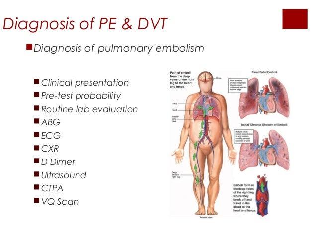 How to Diagnose Pulmonary Embolism