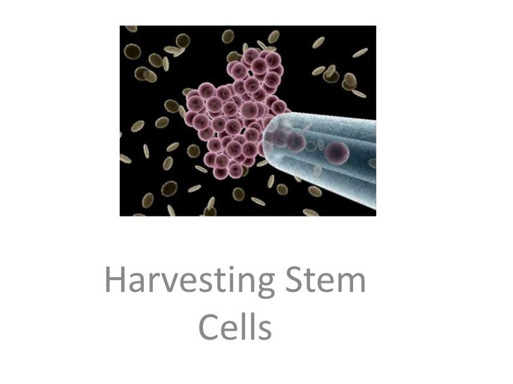 j<br />Harvesting Stem<br />Cells<br />