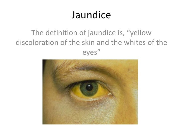 """Jaundice     The definition of jaundice is, """"yellowdiscoloration of the skin and the whites of the                     eyes"""""""