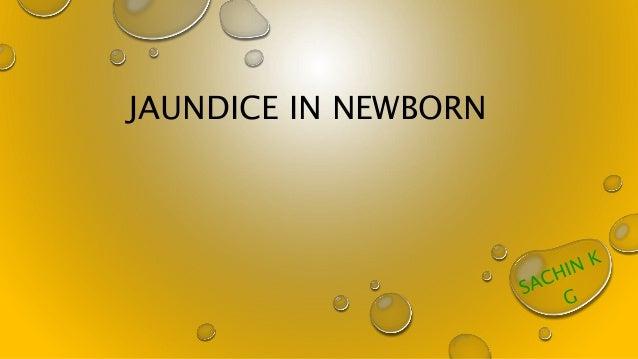 JAUNDICE IN NEWBORN