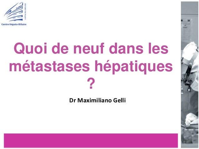 Quoi de neuf dans les métastases hépatiques ? Dr Maximiliano Gelli