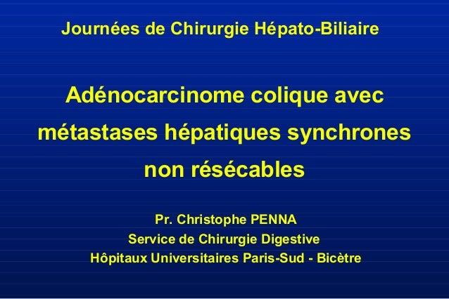 Adénocarcinome colique avec métastases hépatiques synchrones non résécables Pr. Christophe PENNA Service de Chirurgie Dige...