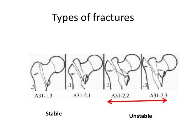 Role Of Thr In Trochanteric Fractures in addition Biomechanics Of Patellofemoral moreover Snowflakes And Agonising Frustration furthermore Palatoglossal Arch Sore further 281. on hip pain