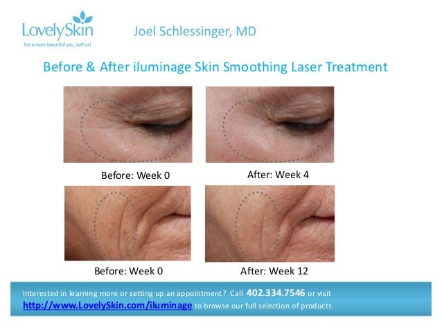 skin smoothing treatment