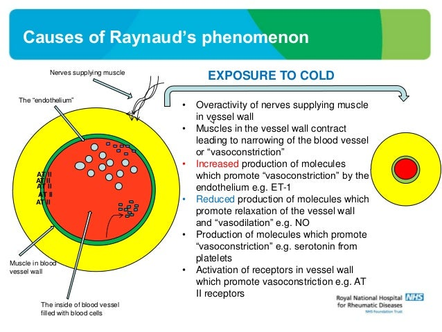 Raynaud S Phenomenon In Systemic Sclerosis Why Do The