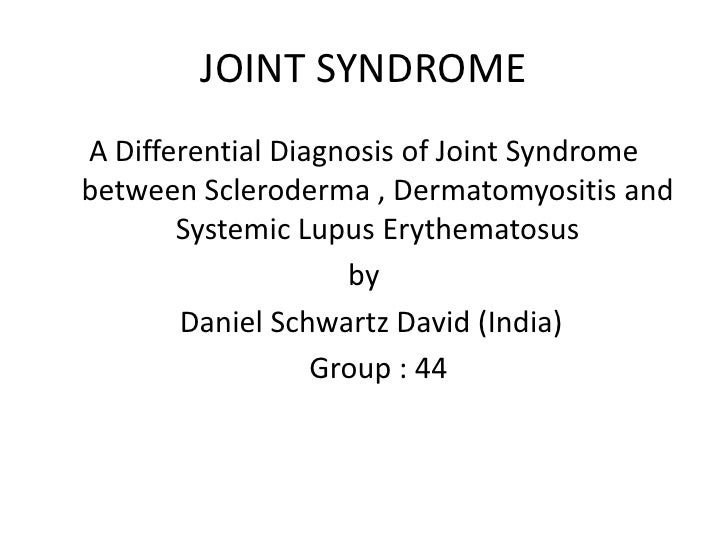 JOINT SYNDROME <br />A Differential Diagnosis of Joint Syndrome  between Scleroderma , Dermatomyositis and Systemic Lupus ...