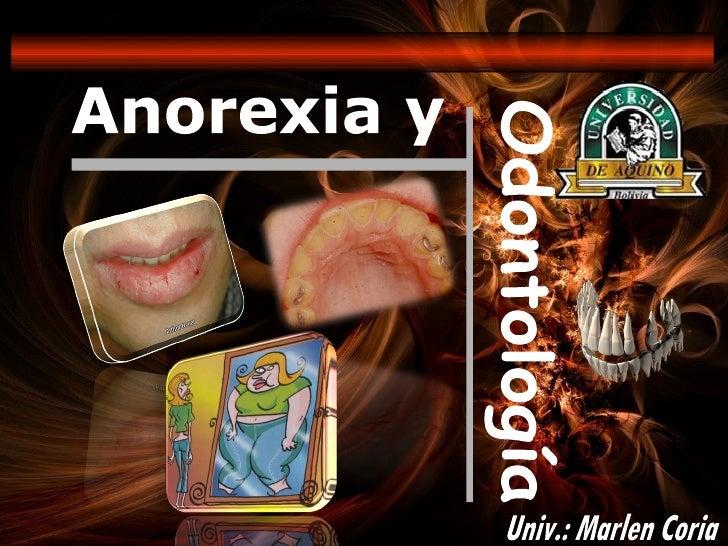 Anorexia y Odontología Univ.: Marlen Coria