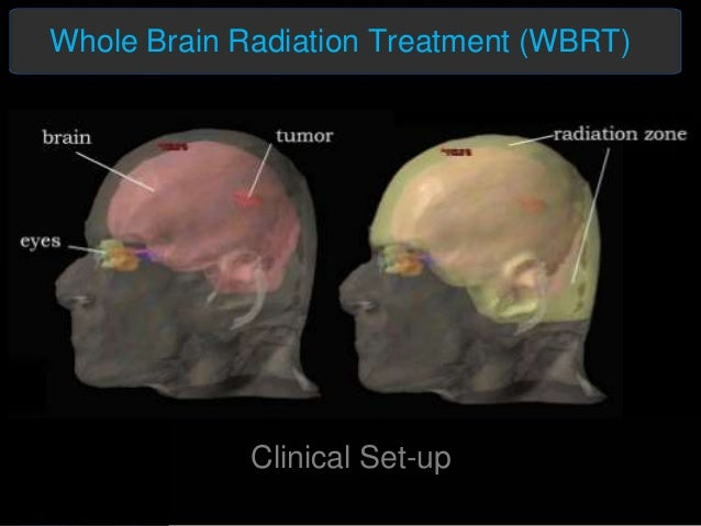 Radiation therapy for brain cancer