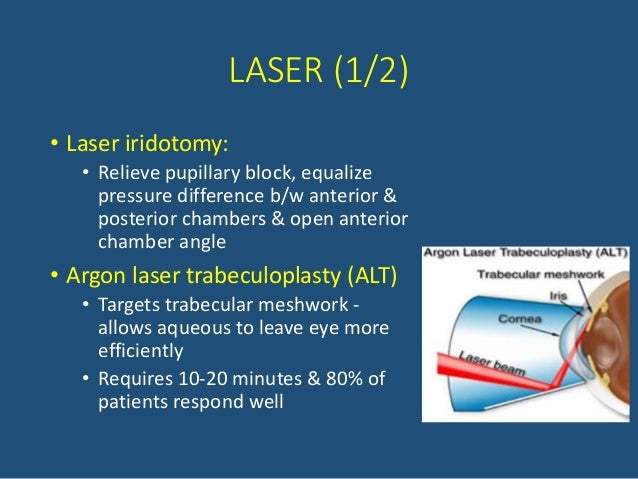 Pharmacotherapy Amp Recent Advances In Glaucoma Management