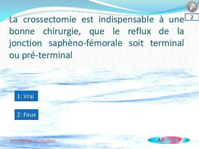 La crossectomie est indispensable à une bonne chirurgie, que le reflux de la jonction saphèno-fémorale soit terminal ou pr...