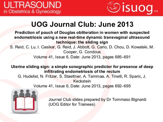 UOG Journal Club: June 2013Prediction of pouch of Douglas obliteration in women with suspectedendometriosis using a new re...