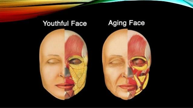 Ogee facial curve