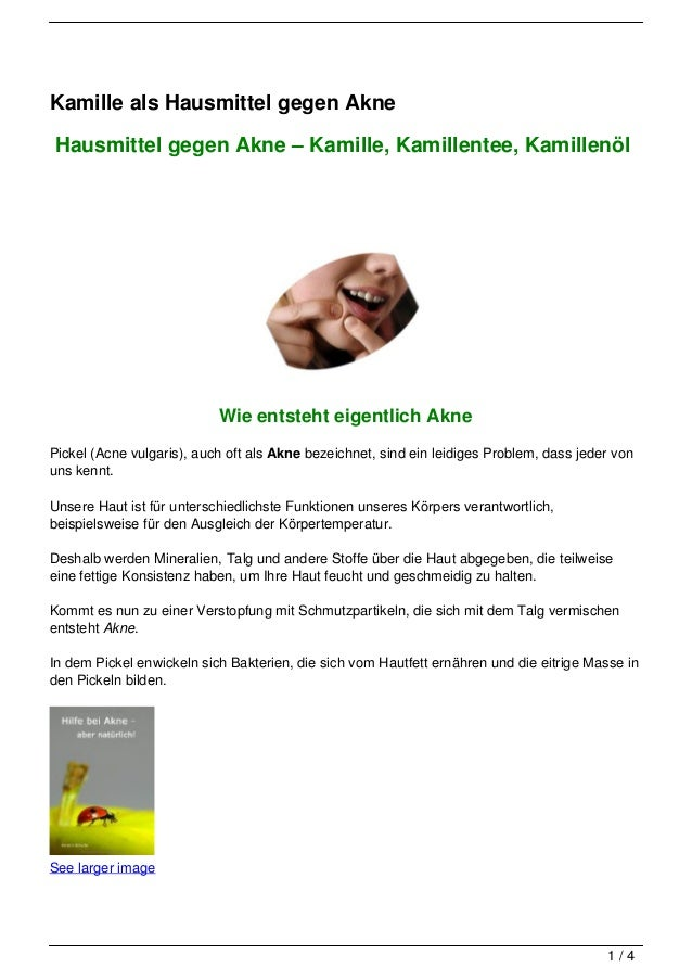 Kamille als Hausmittel gegen AkneHausmittel gegen Akne – Kamille, Kamillentee, Kamillenöl                           Wie en...