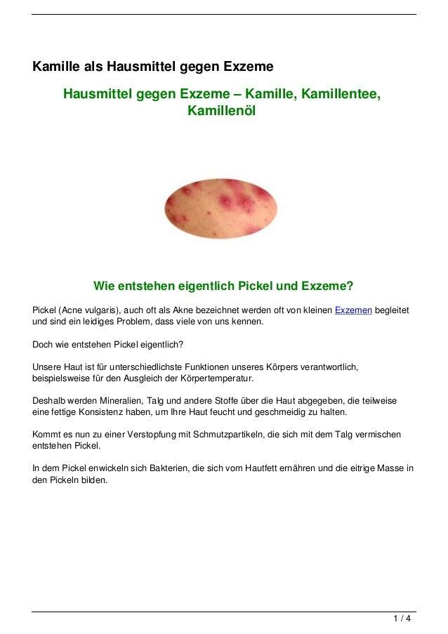 Kamille als Hausmittel gegen Exzeme       Hausmittel gegen Exzeme – Kamille, Kamillentee,                         Kamillen...