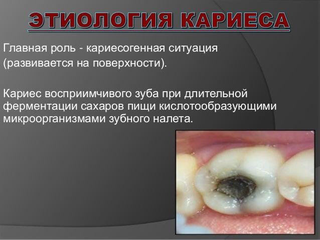 Мятная жевательная резинка при боли в горле