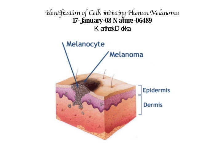 Identification of Cells initiating Human Melanoma 17-January-08 Nature-06489 Kartheek Dokka
