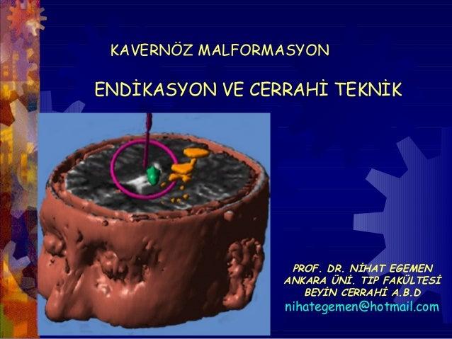 KAVERNÖZ MALFORMASYONENDİKASYON VE CERRAHİ TEKNİK                  PROF. DR. NİHAT EGEMEN                 ANKARA ÜNİ. TIP ...